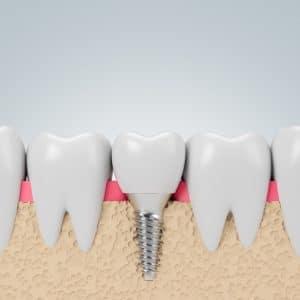 California Implant restoration