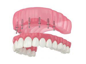 santa rosa implant dentures