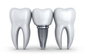 santa rosa dental implants