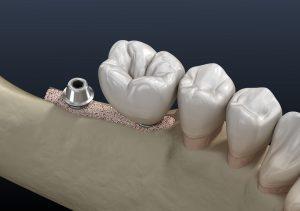 santa rosa jawbone grafting