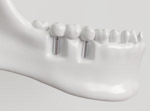 santa rosa implant bridge