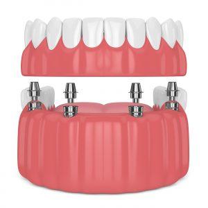 santa rosa dentures implants