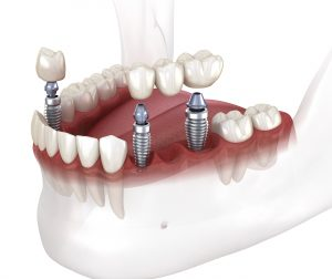 santa rosa extraction and implants